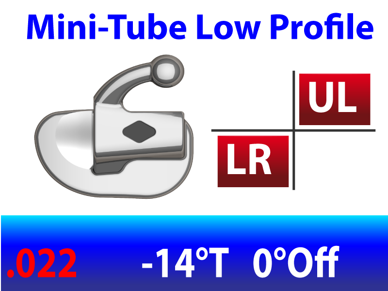 Mini Tube .022 UL/LR  -14°Torq  0°Off 2.5mm - 10/pk